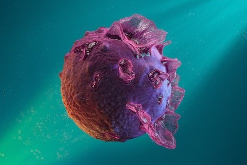 Epstein Barr Virus - tumore del rinofaringe