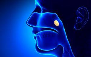 rinofaringe tumore