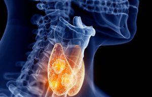 tumore tiroide