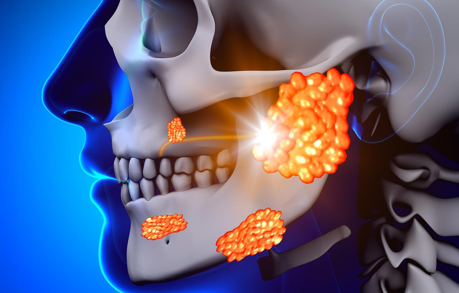 ghiandole salivari tumore