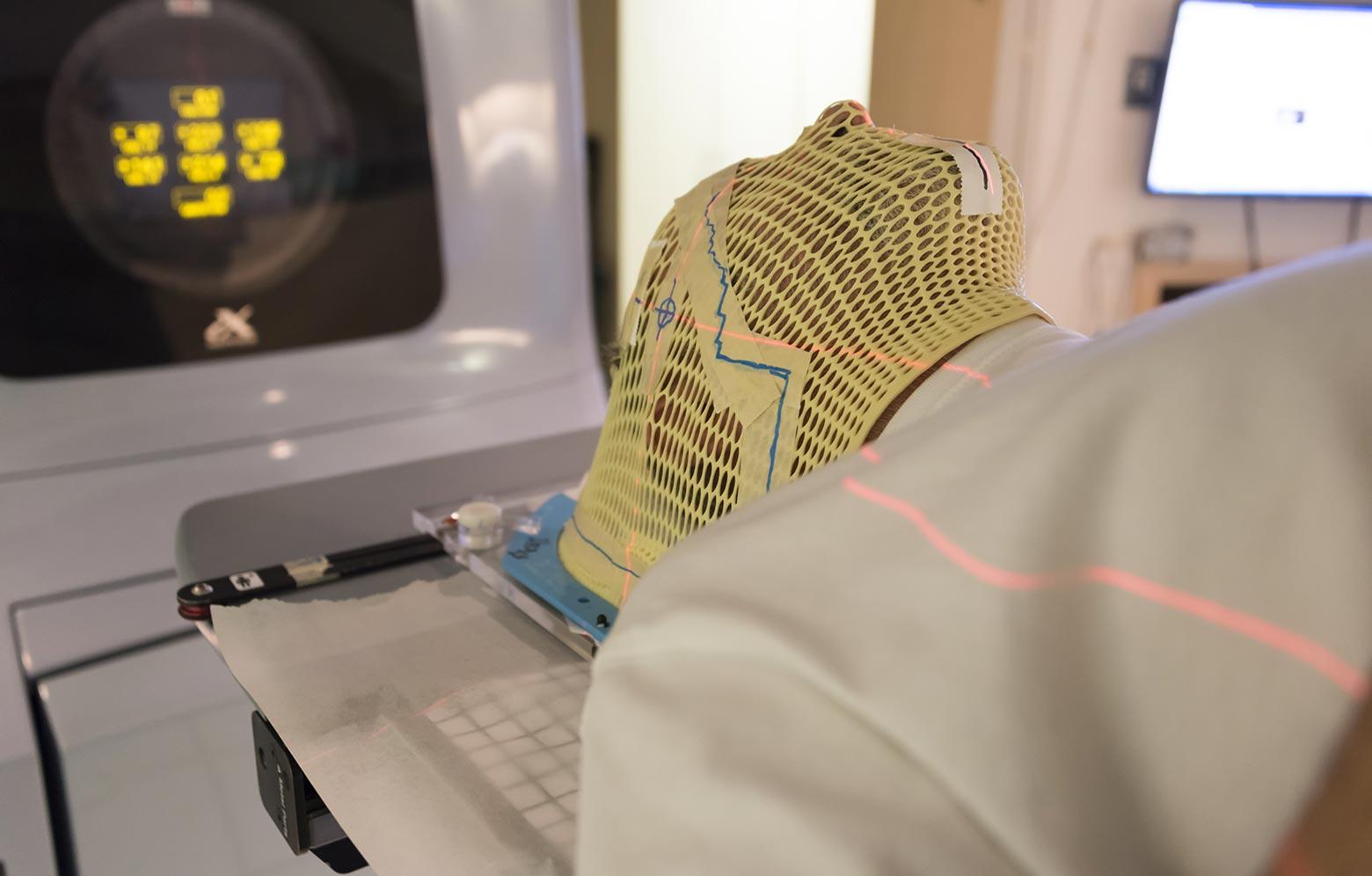 radioterapia tumori testa collo