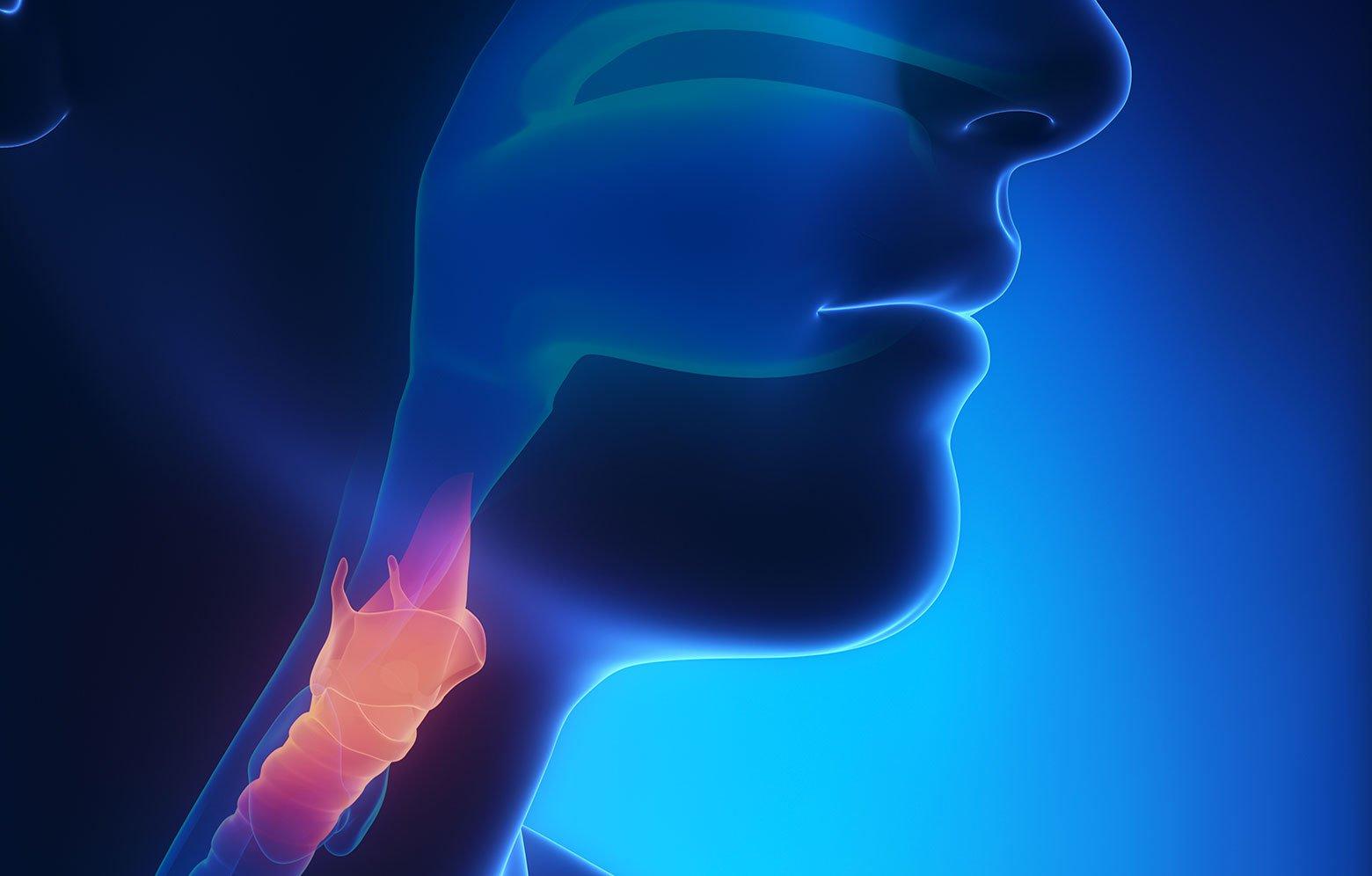tumore laringe